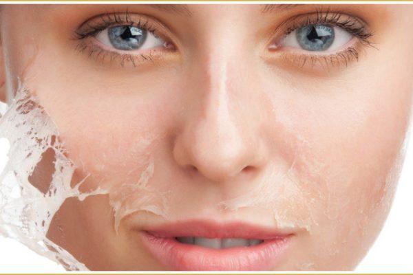 Quimioterapia y radiación: piel seca o sensible