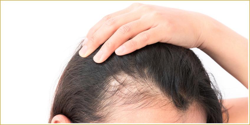 Cómo prevenir la alopecia