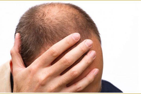 Alopecia androgenética: calvicie común