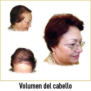 Pelucas centro capilar Ireal Madrid volumen del cabello